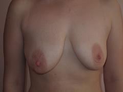 Центр пластической хирургии - уменьшение груди